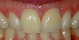 Best Dentist In Lake Elsinore Ca!