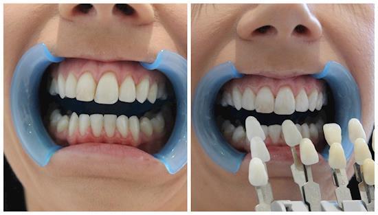 Get Your Sparkling Smile Back with LA Perle Dental