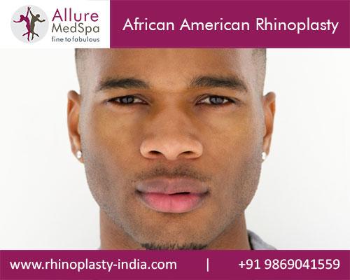 African American Rhinoplasty Mumbai