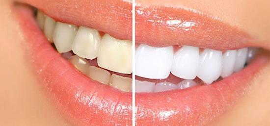 Ensure a Brighter Smile with LA Perle Dental