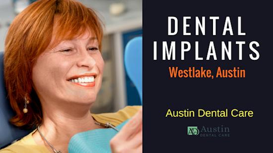 Find Mini Dental Implants in Austin TX
