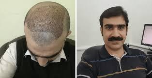 PRP Hair Treatment in Islamabad