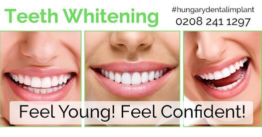 Teeth Whitening Treatment in London