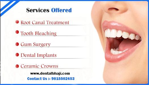 Best Dental Implants Hospital Mohali